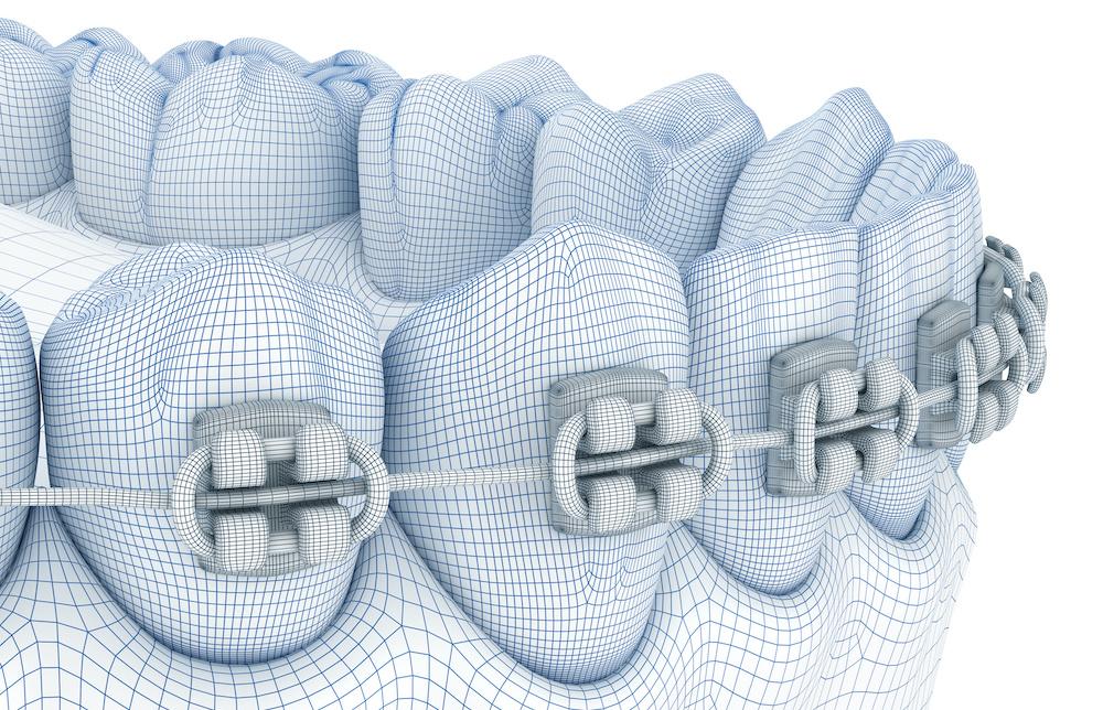 Implantologia Digitale