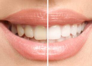 [VIDEO] Lo sbiancamento dentale: come funziona?