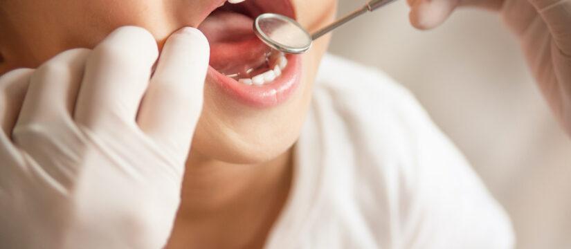 [VIDEO] Curare i denti da latte è importante?