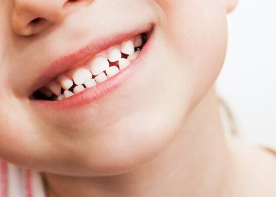 [VIDEO] La prima visita dal dentista
